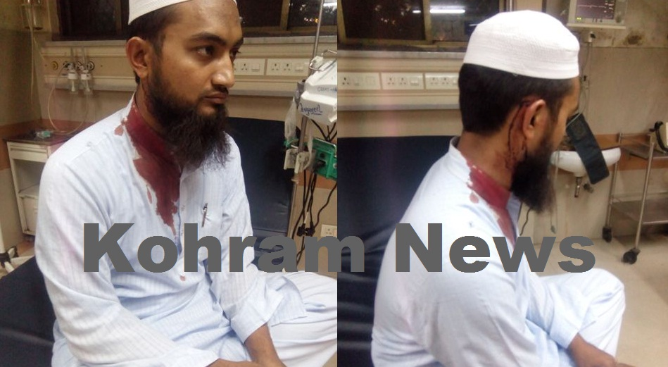 maulana beaten gujarat